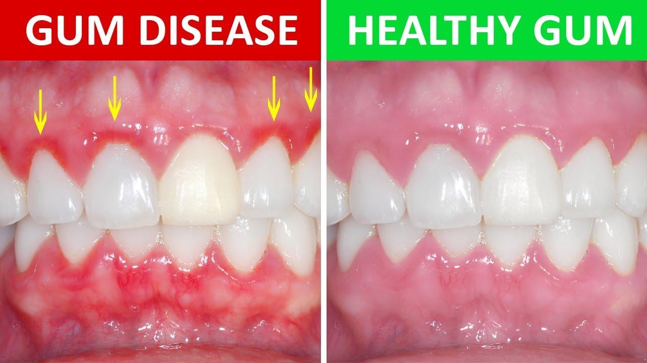 Why are my gums bleeding? - Ascot Dental